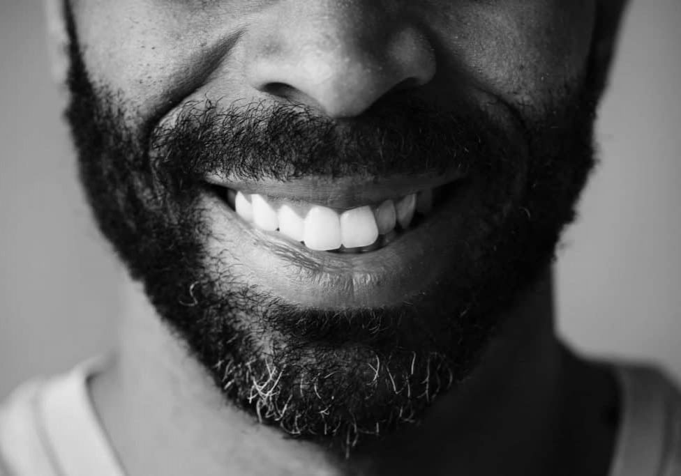 closeup-of-smiling-teeth-of-a-black-man